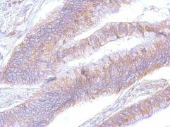 EEF2 Antibody (PA5-27662)