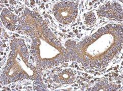 SERCA3 ATPase Antibody (PA5-27691)