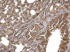 DVL3 Antibody (PA5-27723)