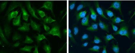 Transferrin Receptor Antibody (PA5-27739)