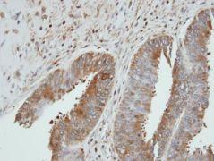 UGP2 Antibody (PA5-27760)