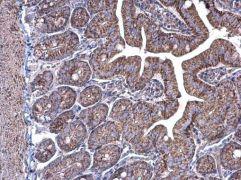 COT Antibody (PA5-27767)