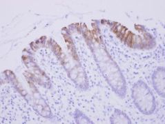 Biglycan Antibody (PA5-27781)