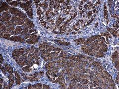 HSD3B2 Antibody (PA5-27791)