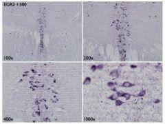EGR2 Antibody (PA5-27814)