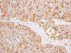 NNT Antibody (PA5-27834)