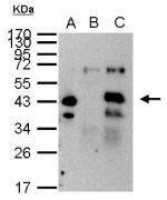 XPA Antibody (PA5-27852)