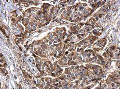 Synaptotagmin 1 Antibody (PA5-27935)