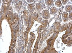 TPK1 Antibody (PA5-27970)