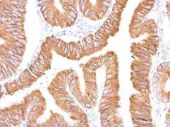 CES2 Antibody (PA5-28027)