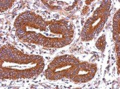 HLA-DQB2 Antibody (PA5-28046)