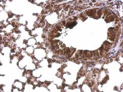 TBPL1 Antibody (PA5-28088)