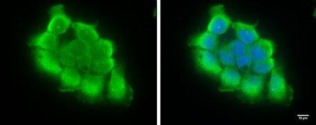 TICAM1 Antibody (PA5-28105)