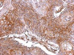 ELA3A Antibody (PA5-28155)