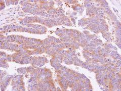 alpha Dystroglycan Antibody (PA5-28179)