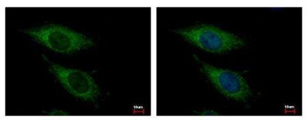 OGDH Antibody (PA5-28195)