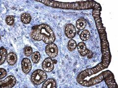 Cytokeratin 6A Antibody (PA5-28235)