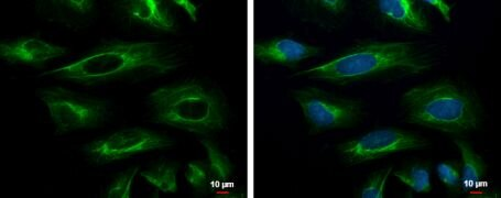 Cytokeratin 18 Antibody (PA5-28279)