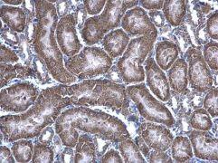 HAGH Antibody (PA5-28292)