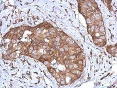 CD97 Antibody (PA5-28350)