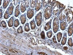 CD2AP Antibody (PA5-28391)