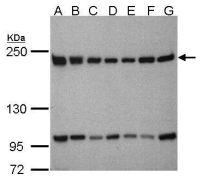 TAF172 Antibody (PA5-28429)