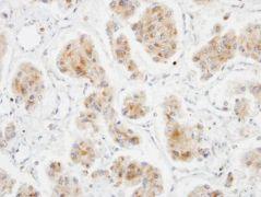 DLC1 Antibody (PA5-28443)