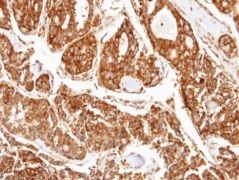 PPP2R5D Antibody (PA5-28445)