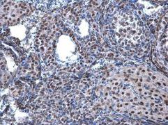 HP1 beta Antibody (PA5-28448)