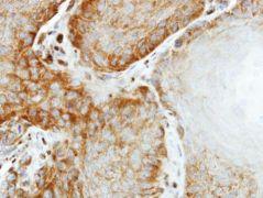 eIF2 beta Antibody (PA5-28469)