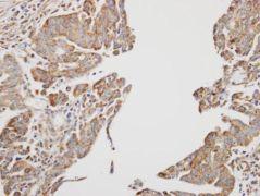 AMPK beta-1 Antibody (PA5-28493)