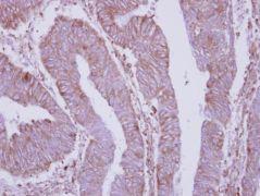 DPY19L4 Antibody (PA5-28515)