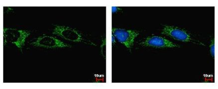 ALDH1B1 Antibody (PA5-28554)