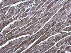 AGK Antibody (PA5-28566)