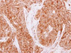 CaMKI gamma Antibody (PA5-28580)