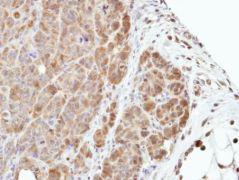 MEK3 Antibody (PA5-28590)