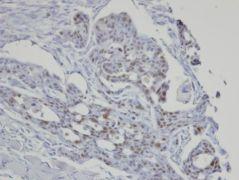 SART3 Antibody (PA5-28625)
