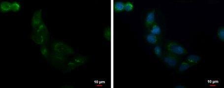 ALS2CR2 Antibody (PA5-28635)