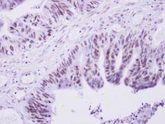 PRAM1 Antibody (PA5-28720)
