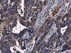 CXCR3 Antibody (PA5-28741)