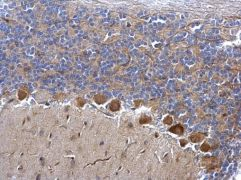 CDK5 Antibody (PA5-28795)