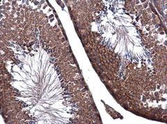 ZO-1 Antibody (PA5-28858)
