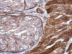 CD146 Antibody (PA5-28893)