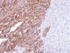 FDFT1 Antibody (PA5-28912)