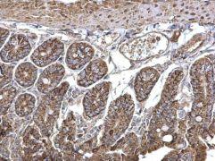 SEC23A Antibody (PA5-28984)