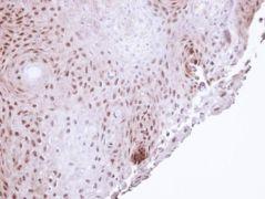 POLH Antibody (PA5-29063)