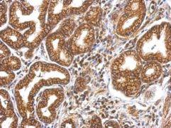 MYO1A Antibody (PA5-29084)