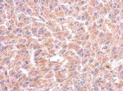 WARS Antibody (PA5-29102)