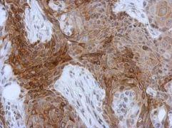 Cytokeratin 13 Antibody (PA5-29120)