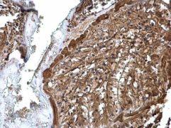 V-ATPase A Antibody (PA5-29191)
